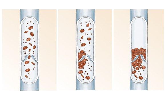 vein thrombosis anatomy -